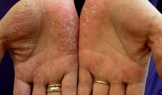 medicines for psoriasis