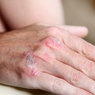 the manifestation of psoriasis