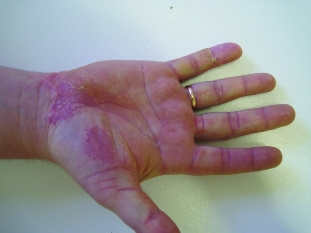 Pustules of the palms of the hands and the soles