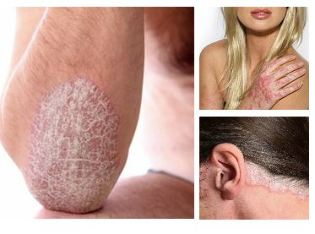What is psoriasis and how to treat it
